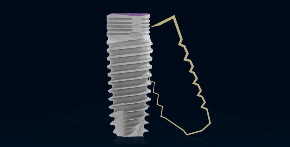Implantul MIS V3