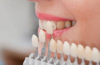 Fațetele dentare